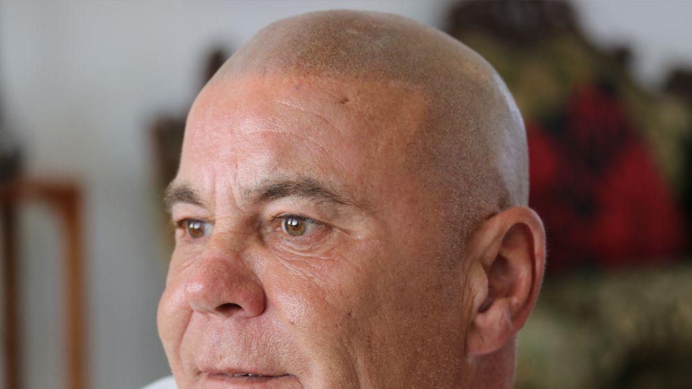 scalp micropigmentation with grey hair