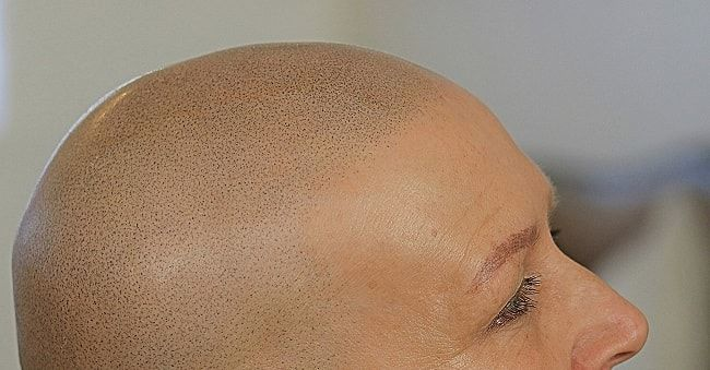 3D hairline scalp micropigmentation