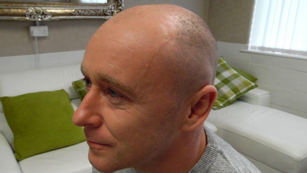 skalptec-client-before-treatment