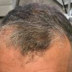 Stem Cell Research for Hair Growth and Alopecia