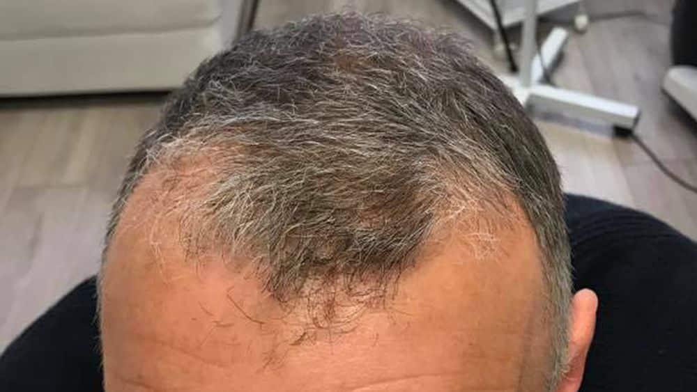 baldness and receding hair, skalptec, scalp micropigmentation, smp