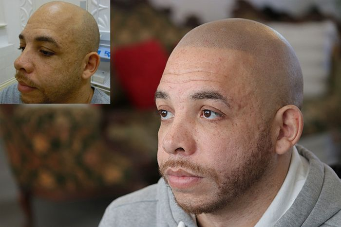 Client Hair Micro Pigmentation