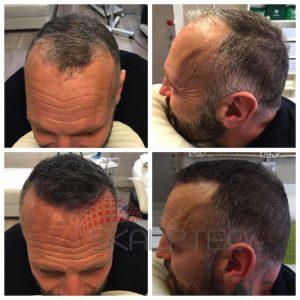 adding density to hair