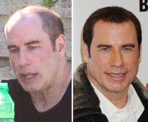 John Travolta celebrities with hair transplants