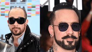 aj mclean before and after hair transplantation