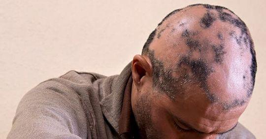 alopecia areata hair loss, alopecia areata in females