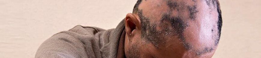 alopecia areata hair replacement