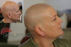 alopecia areata in females, alopecia totalis, Skalptec UK