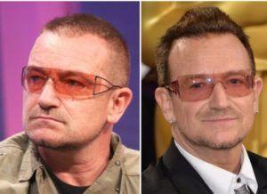 Bono U2 celebrity with hair transplant