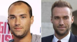 calum best celebrity with hair transplant