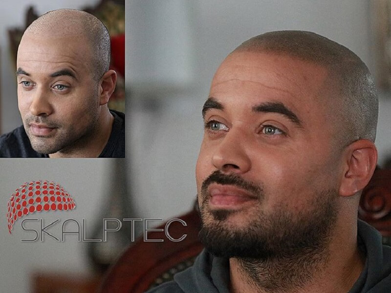 dark scalp micropigmentation