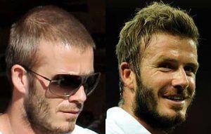 David Beckham celebrity with hair transplant