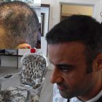 SMP with Hair and Hair Transplant Scars