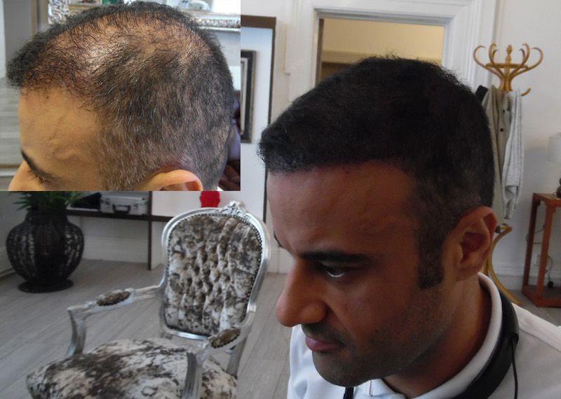 Adding density Scalp Micropigmentation