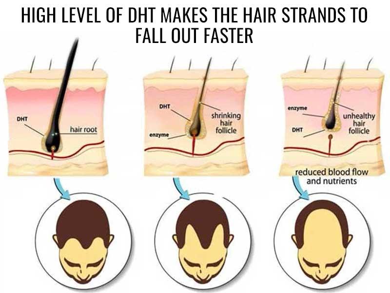 dht and hair loss