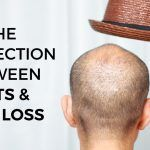 Do Hats Cause Hairloss?