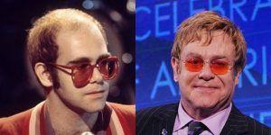 Elton John celebrity had a hair transplant