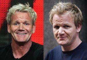 Gordon Ramsay celebrity with hair transplant