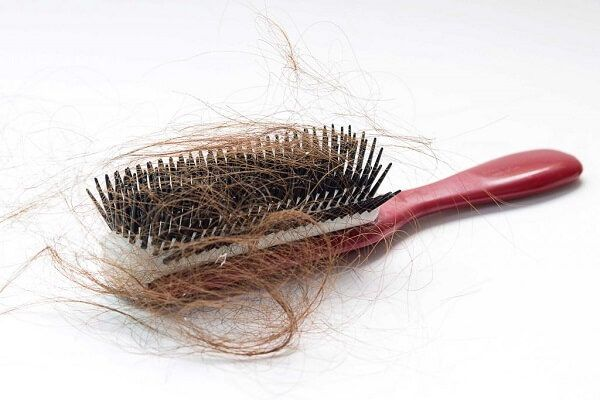 hair-falling-out-on-a-hairbrush