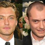 celebrities with hair transplants