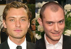 jude law actor hair transplant before and after
