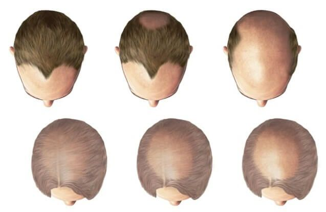 male-pattern-baldness-female-pattern-baldness