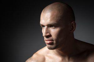 smp hair, is scalp micropigmentation permanent