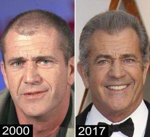 celebrities with hair transplants