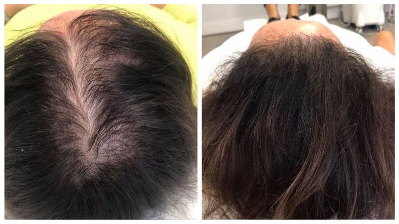 Scalp Micropigmentation for Women, how to cover bald spots