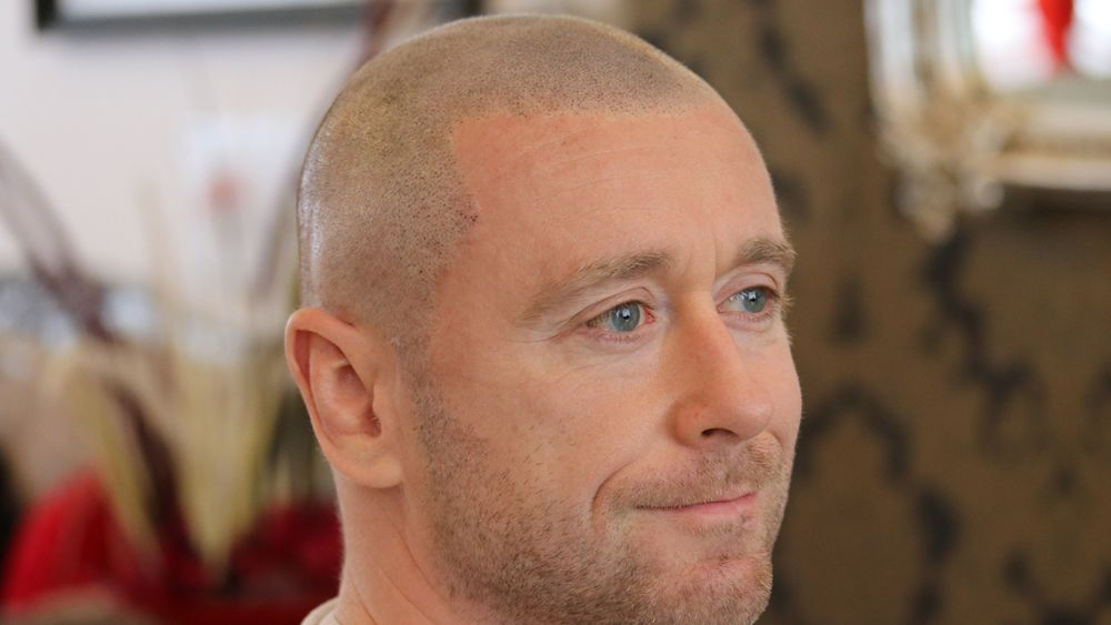 Scalp Micropigmentation Patrick