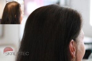 woman-before-after-scalp-micropigmentation