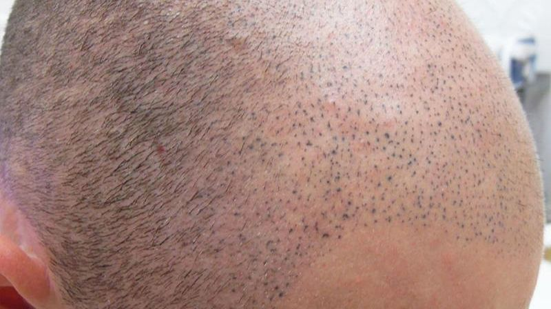 Repairing Bad Scalp Micropigmentation Treatments