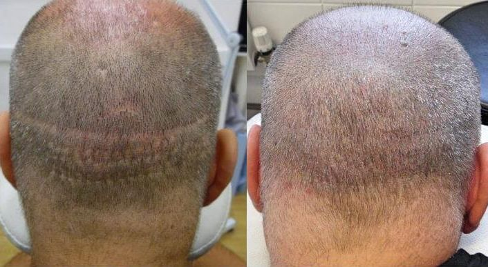 Scalp Micropigmentation for Scar Camoflage