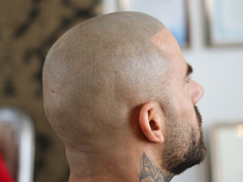 Scalp Micropigmentation 3D Process