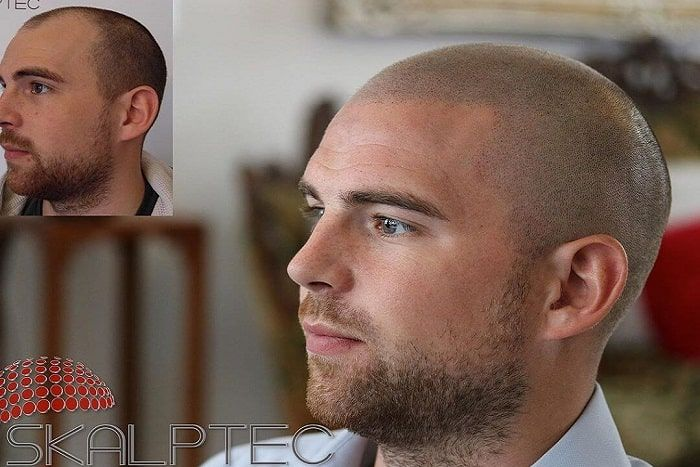 skalptec scalp micropigmentation before and after picture male