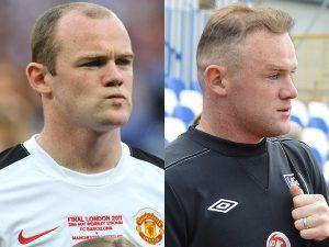 Wayne Rooney celebrity with hair transplant
